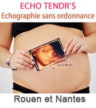 echographie-sans-ordonnance